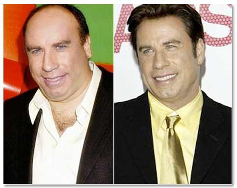John Travolta Careca